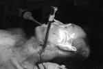 Thanh sắt giàn treo đâm vào cổ nam công nhân