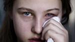 Cô gái Hưng Yên hỏng mắt vì tự ý dùng thuốc