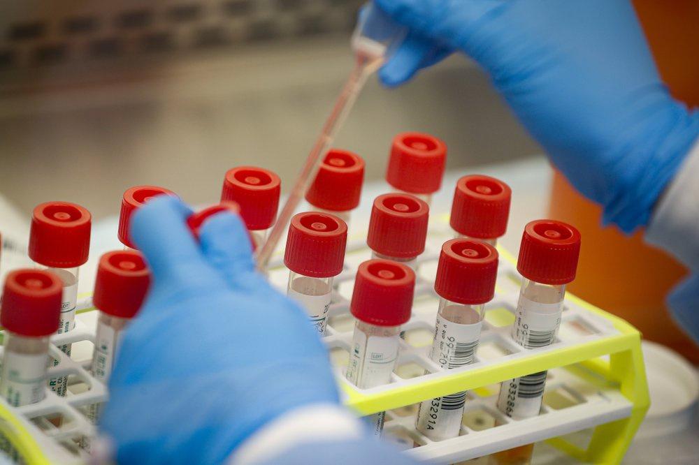 """Việc CDC """"ôm"""" cả việc sản xuất bộ dụng cụ và thực hiện quy trình xét nghiệm được cho là đã tạo một nút thắt trong công tác xác định quy mô của dịch bệnh tại Mỹ. Ảnh: AP."""