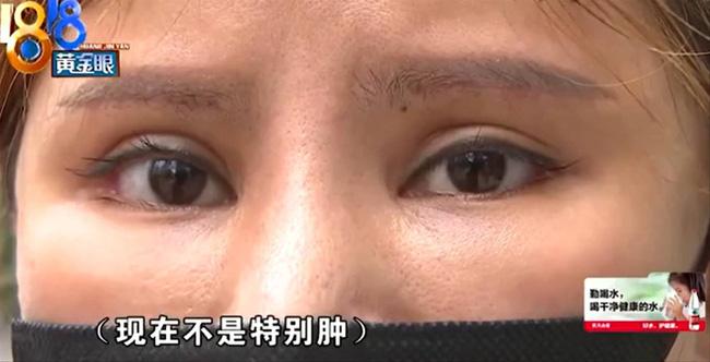Bỏ 65 triệu làm thẩm mỹ, chị gái ức phát khóc vì nhận về khuôn mặt cau có khó chịu 24/7 - Ảnh 3.