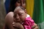 Virus Zika nguy hiểm thế nào?