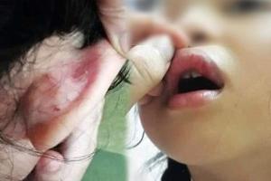 Kết quả giám định sức khỏe vụ phụ huynh tố giáo viên chủ nhiệm bạo hành học sinh ở Hà Nội