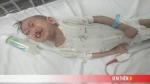 Xót xa cháu bé quê Kon Tum 3 tuổi nặng 4,5kg mang nhiều
