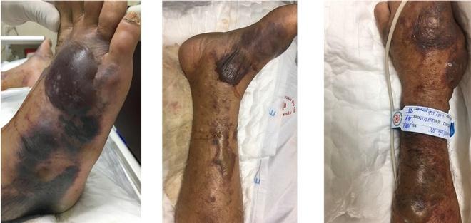 Bệnh nhân Đ. (59 tuổi, trú tại huyện An Dương, Hải Phòng) nhập viện trong tình trạng sốc nhiễm khuẩn, suy đa phủ tạng. Ảnh: BVCC.