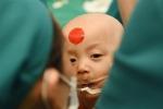 Cặp song sinh Trúc Nhi - Diệu Nhi đã tỉnh lại sau ca mổ hơn 12 tiếng, đang được chăm sóc tích cực