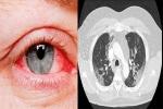 Phát hiện hàng loạt triệu chứng kỳ lạ với mức độ cực kỳ nguy hiểm của Covid-19