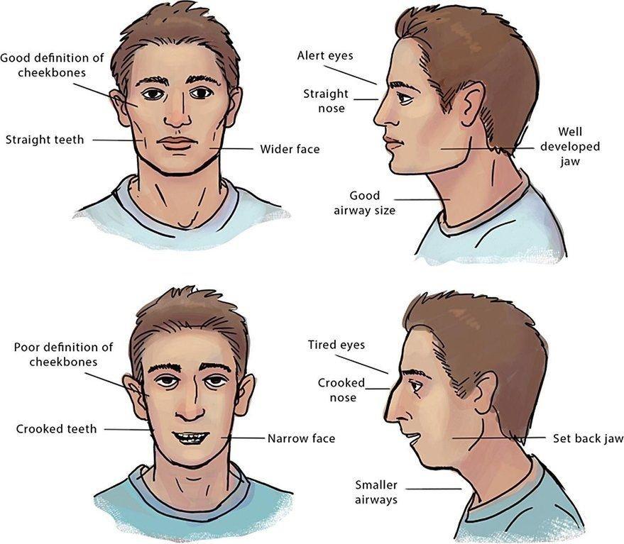 Hình ảnh chụp tư thế mặt thẳng và mặt nhìn nghiêng. 2 hình trên là mô tả các nét mặt của người bình thường không có thói quen xấu, 2 hình dưới là nét mặt điển hình của bệnh nhân thở miệng.