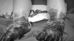 Yên Bái: Bé trai nhiễm trùng nặng toàn bộ 2 bàn chân sau khi đắp thuốc Nam chữa bỏng