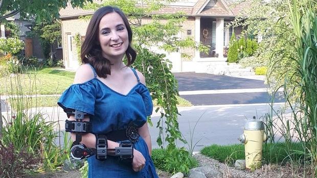 Gabriella luôn phải mặc đồ bảo hộ để hỗ trợ nâng cánh tay của mình.