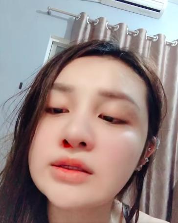 Thanh Vân chảy máu mũi sau lần tắm gội lúc 12h đêm.