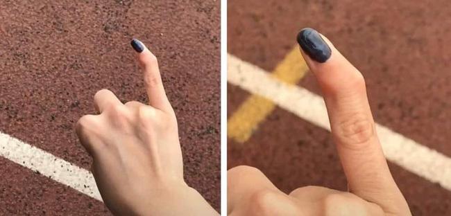 Một trường hợp khác cũng bị biến dạng ngón tay út.