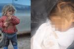 Cái chết của bé gái 6 tuổi bị xích, nhốt trong lồng gây chấn động thế giới và câu chuyện phía sau bức ảnh cuối đời lột trần thảm cảnh ít ai thấu