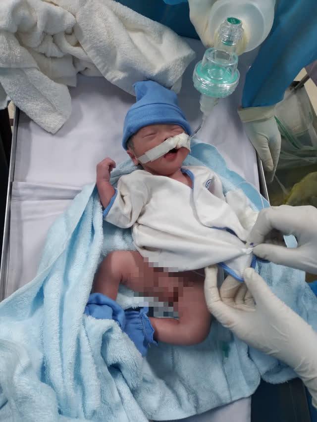 Bé trai chào đời ở phòng hồi sức cấp cứu COVID-19 - Ảnh 2.