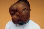 Mang gương mặt quái vật, cậu bé bị cả mẹ ruột bỏ rơi, nhiều năm sau gây ngỡ ngàng