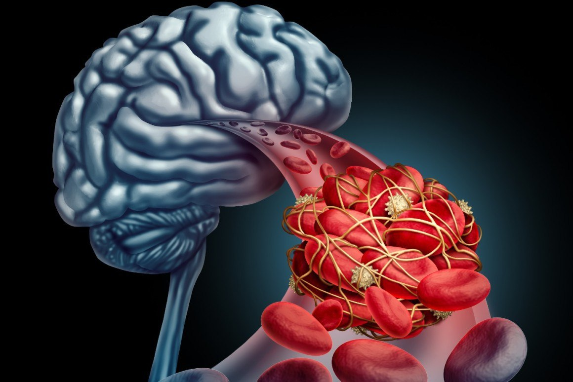 Scientists-Devise-New-System-to-Monitor-Brain-Bloo.jpg