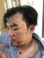 Tiết lộ sốc vụ thực khách tố nhà hàng đánh chấn động não ở Đà Nẵng